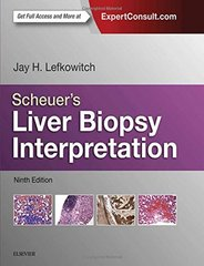 Scheuer's Liver Biopsy Interpretation 9th Edition 2015 Hardcover by Lefkowitch