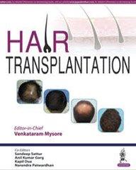 Hair Transplant by Venkataram Mysore