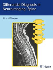 Differential Diagnosis in Neuroimaging: Spine by Steven Meyers