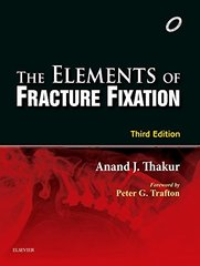 The Elements of Fracture Fixation 3/e, 2015 Paperback by AJ Thakur