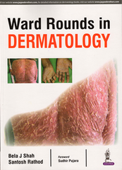 WARD ROUNDS IN DERMATOLOGY BY BELA J SHAH & SANTOSH RATHOD