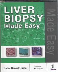 Liver Biopsy Made Easy by Nalini Bansal Gupta