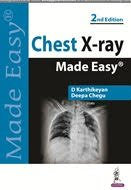 Chest X-ray Made Easy 2nd edition 2017 BY D Karthikeyan & Deepa Chegu