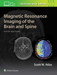 Magnetic Resonance Imaging of the Brain and Spine 5th edition 2017 by Scott W. Atlas