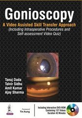 Gonioscopy A Video Assisted Skill Transfer Approach (Including Intraoperative Procedures and Self-assessment Video Quiz) by Tanuj Dada