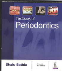 TEXTBOOK OF PERIODONTICS BY SHALU BATHLA