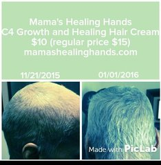 Customer Results Hair loss Due To Chemotherapy and Radiation