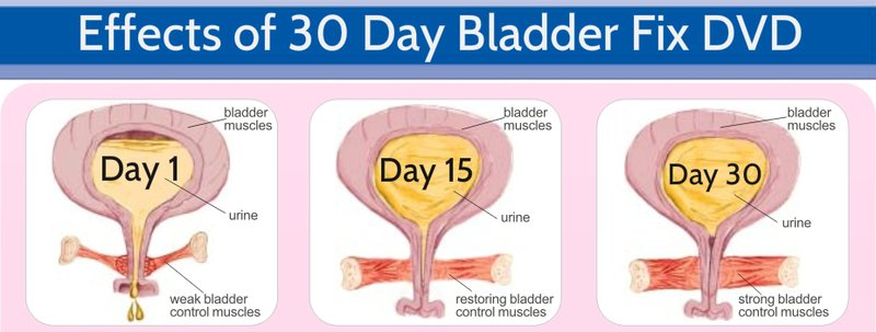 Natural Remedy For Bladder Incontinence